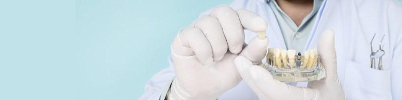 Zębowe implanty stomatologiczne